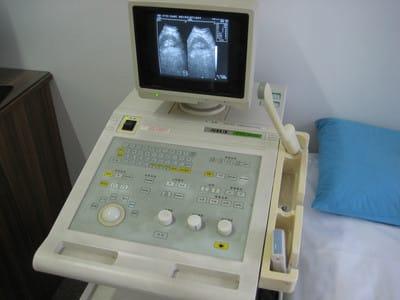超声显像诊断仪